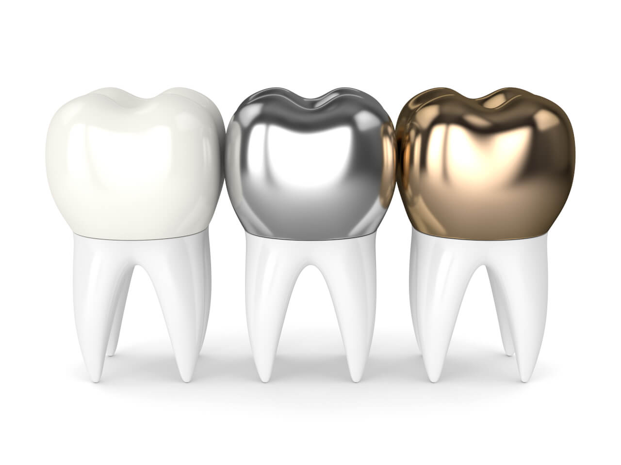 tooth crown price