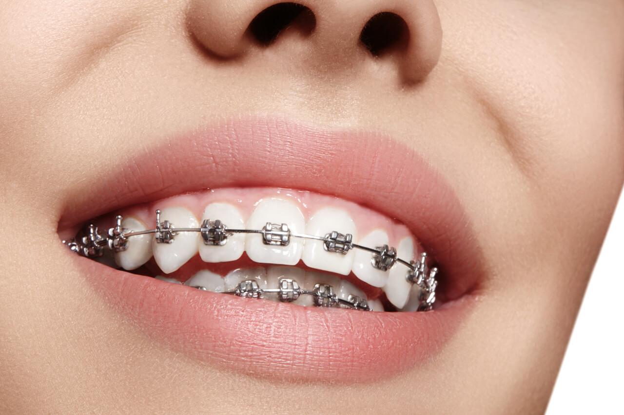 do braces make your teeth loose